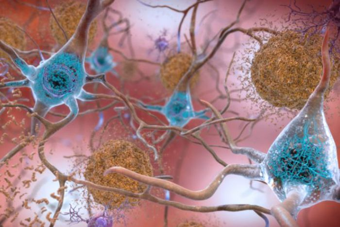 Artist's rendering of amyloid-beta plaque