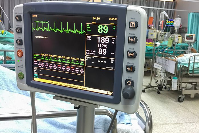 Research Predicts Dangerous Blood Pressure Drops in ICU Patients