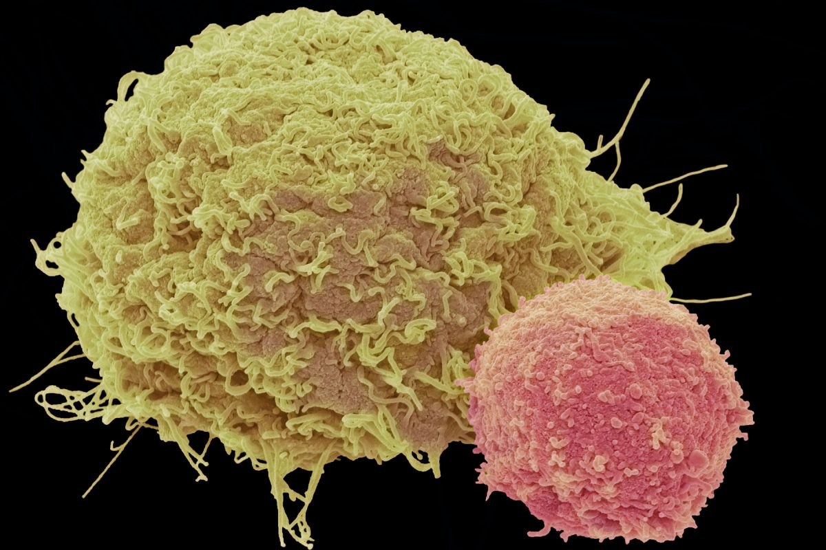 A red t-cell attached to a cancer cell.